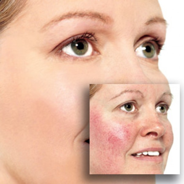 Dry, Red Patches On Your Skin Rosacea Or Eczema Could Be The Culprit