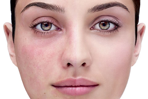 Adult Acne The Myths About Acne Flair-Ups Debunked!