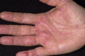 3 Eczema Treatment Options