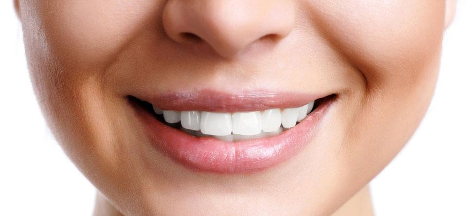 White And Shiny Teeth