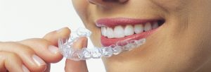 7 Reasons Teens Like Invisalign